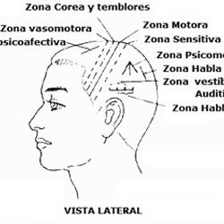 craneopuntura